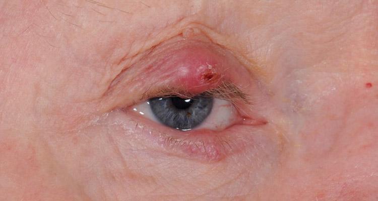 Peri-ocular Lumps and Bumps