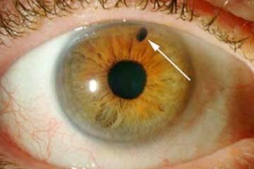 Secondary Glaucoma