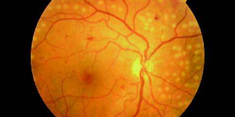Treatment of the Diabetic Retinopathy